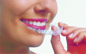A woman with bright pink lipstick holding an Invisalign aligner in front of her mouth