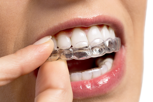 A woman putting on an upper Invisalign aligner