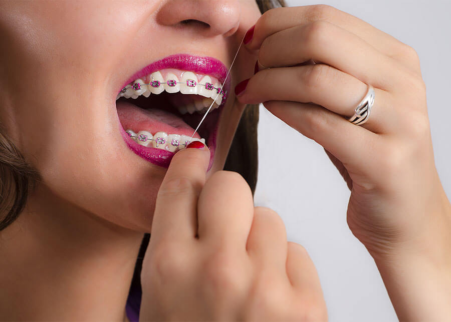 A woman with braces trying to floss