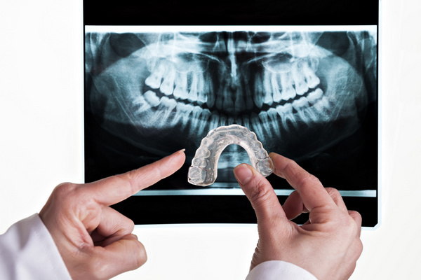 A dentist holding up an aligner with a full mouth xray in the background