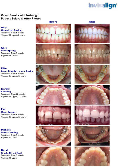 before and after treatment photos of Invisalign patients