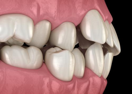 digital model of misaligned teeth