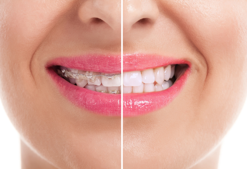 female patient's smile before and after braces